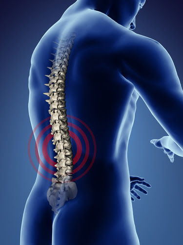 Back pain in Coon Rapids